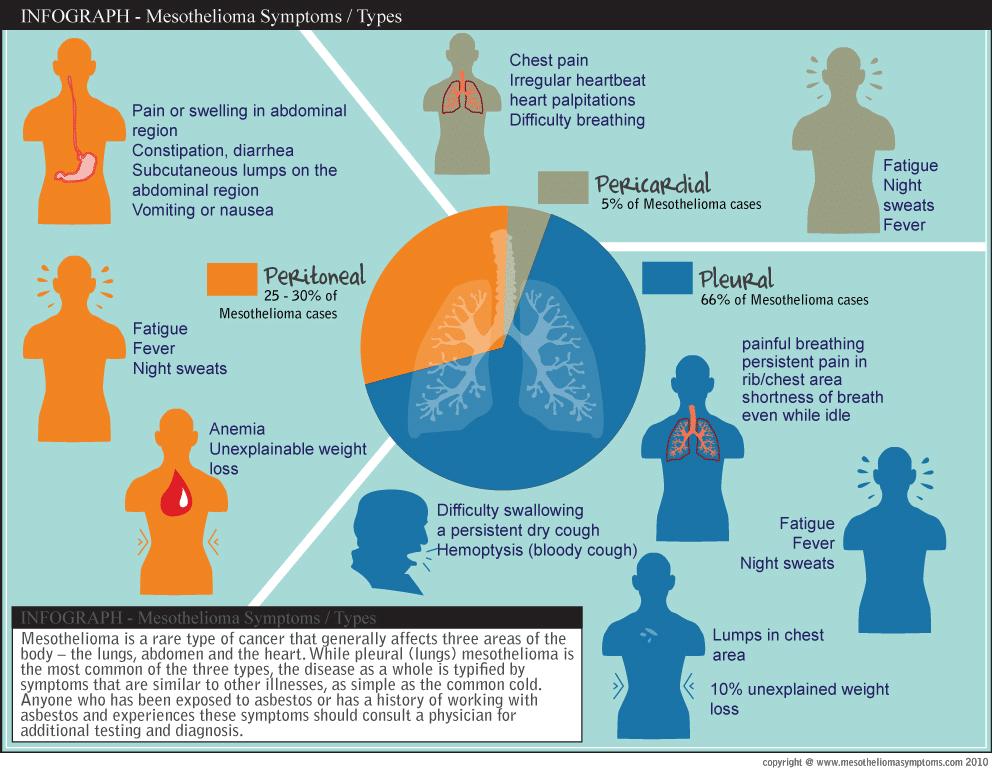 mesothelioma-symptoms